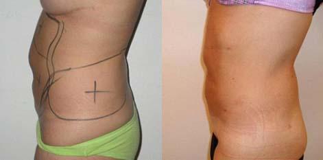liposuccion ventre et hanches