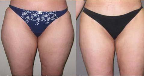 avant et après une liposuccion Tunisie