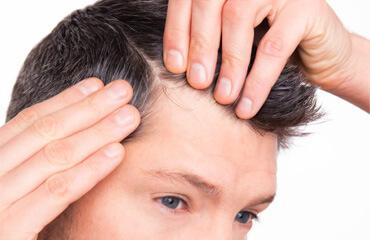 Greffe des cheveux