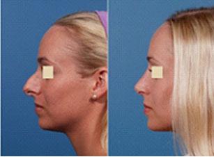 résultat rhinoplastie tunisie avant et après