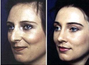 photo chirurgie esthetique nez avant et après