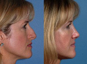 photo rhinoplastie avant et après